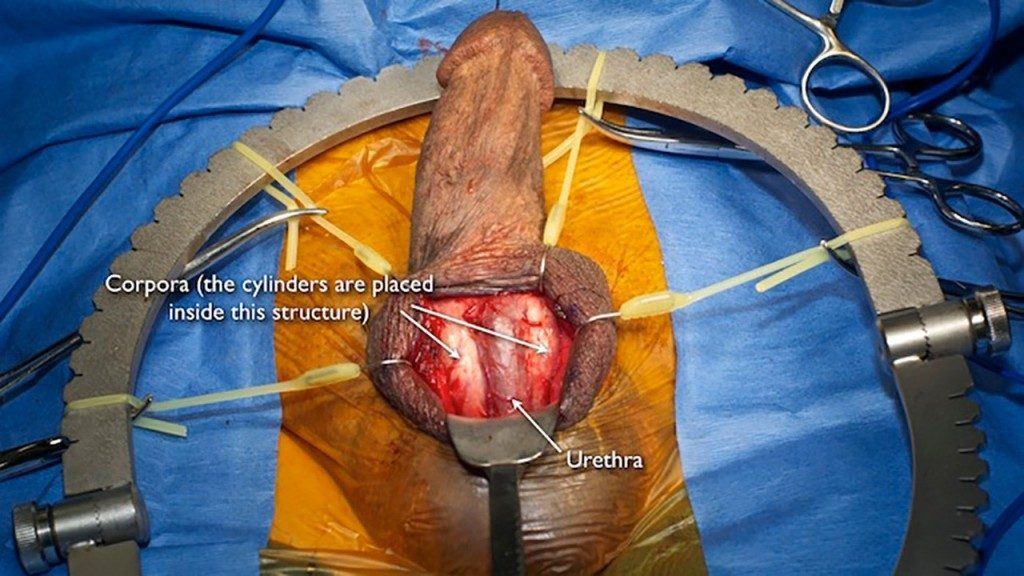 Agree, this Penis implant pics opinion