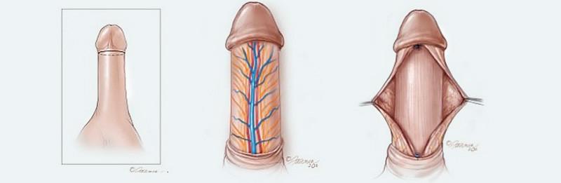 Dorsal graft