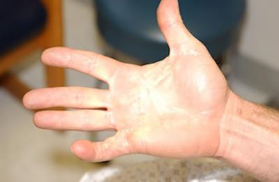 Dupeytrens finger