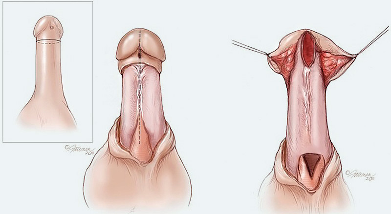Flap graft urethroplasty