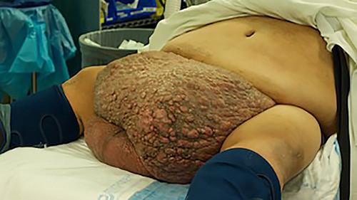 Massive scrotal lymphedema