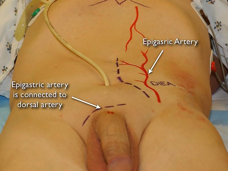 Penile revascularization