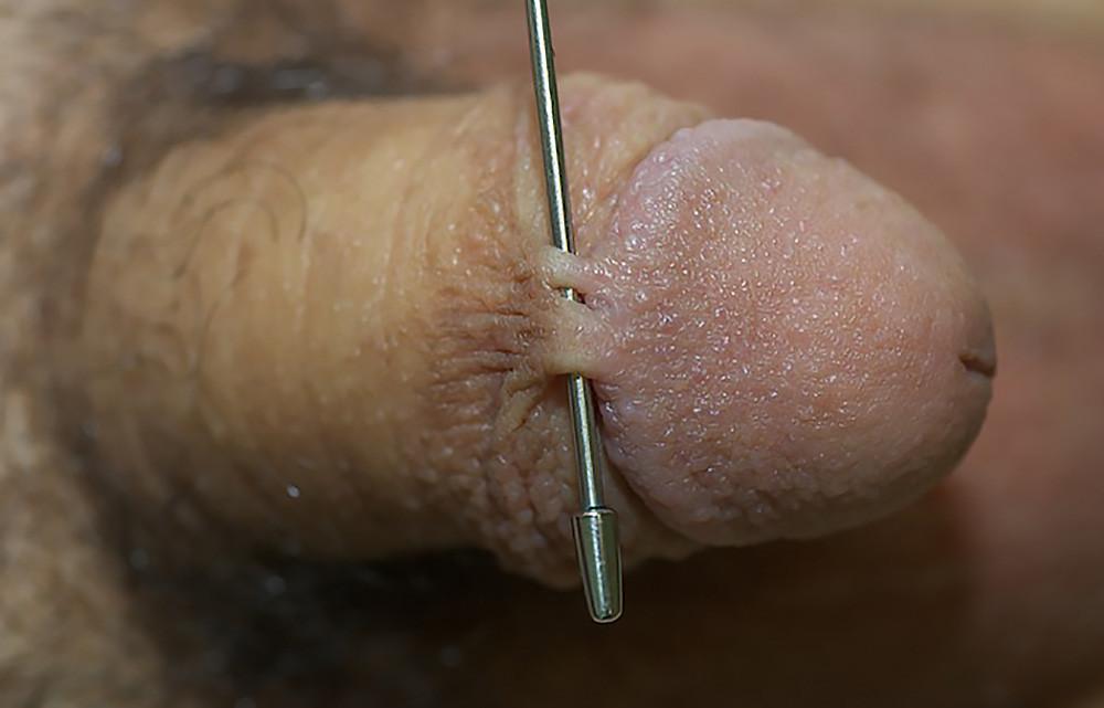 Penile skin adhesions