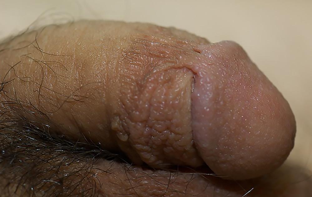 Genital Skin Tags