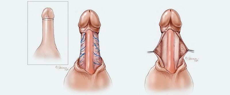 Peyronies ventral