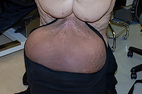 Scrotal Lymphedema