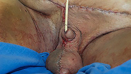 Scrotal lymphedema surgery