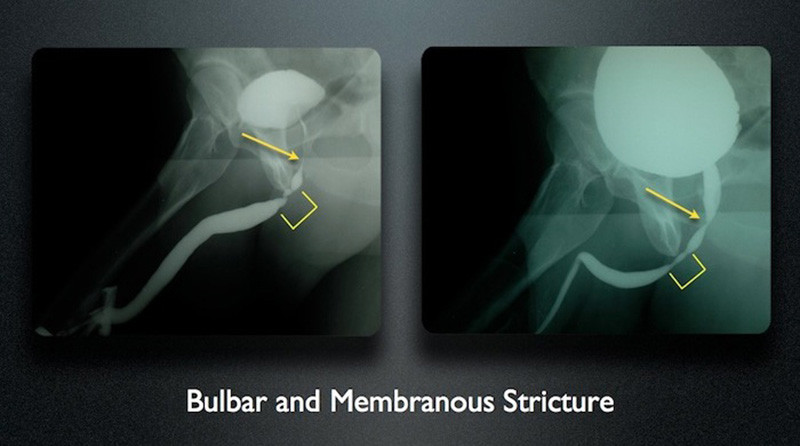 Bulbar membranous stricture
