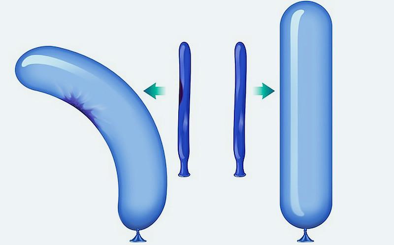 Peyronies plaque visualization
