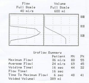Normal flow pattern after successful urethroplasty