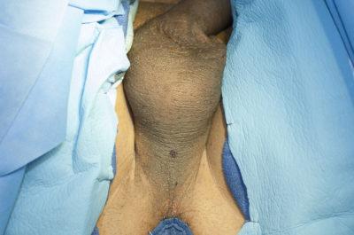 Perineal Urethrostomy Before